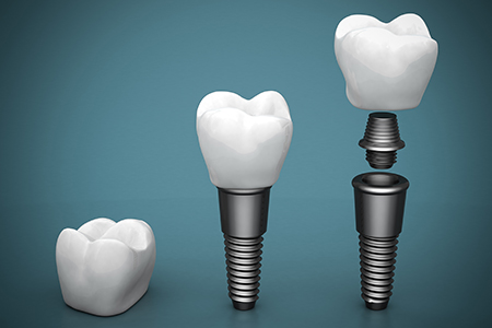 Dental Implants Hendersonville NC Hendersonville Family Dental
